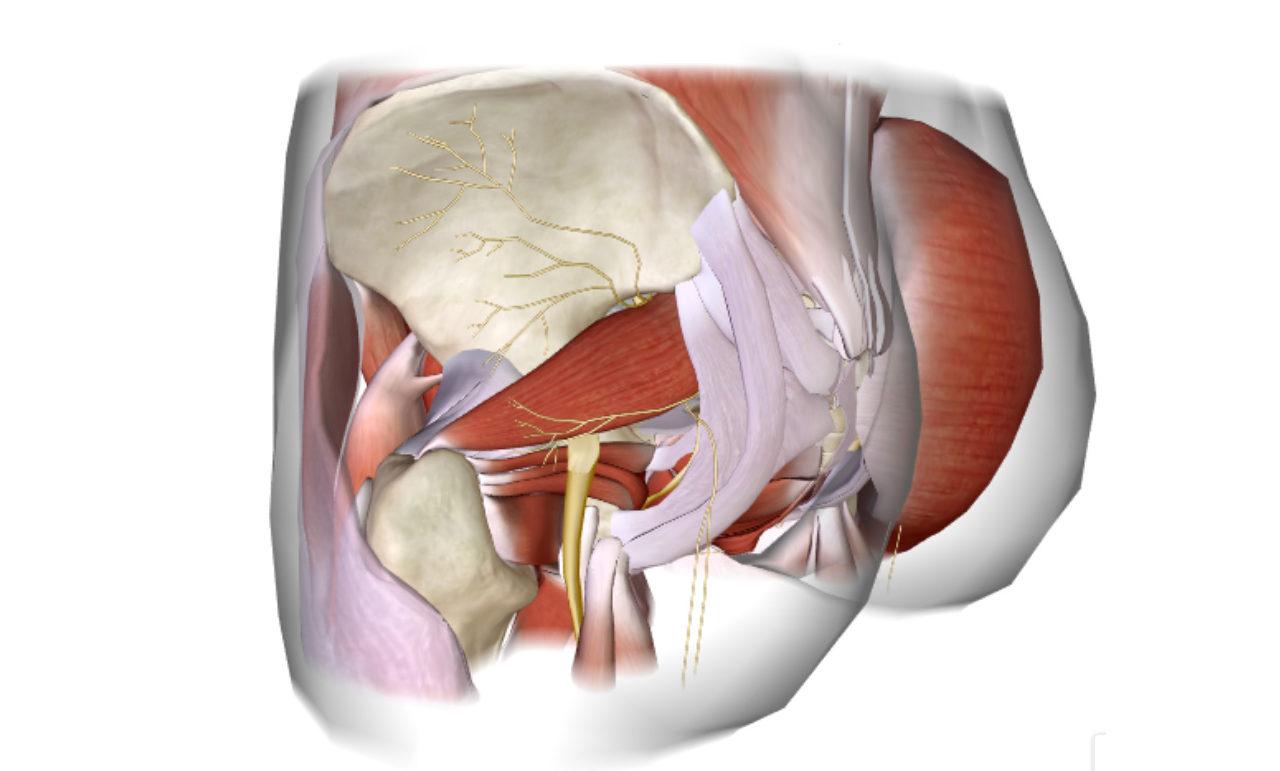 כאבי גב תחתון מקרינים לרגל – פיריפורמיס סינדרום
