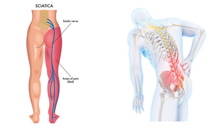 כאב גב תחתון עם הקרנה לרגל – סיאטיקה – תרגיל לסיאטיקה