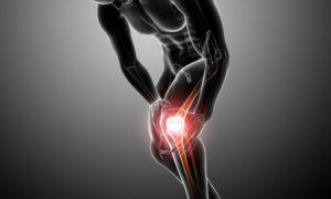 כאבי ברכיים – תרגילים לחיזוק ברכיים