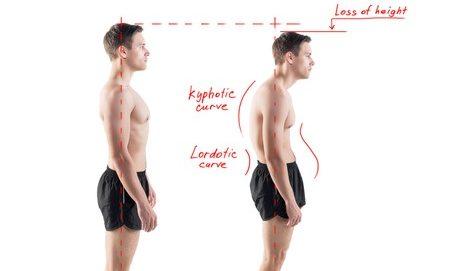 סובלים מגב כפוף? התרגיל הזה יעזור לכם ליישר את הגב ואת היציבה שלכם
